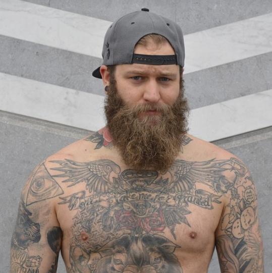 Entscheidung rückgängig machen: Tattooentfernung Essen